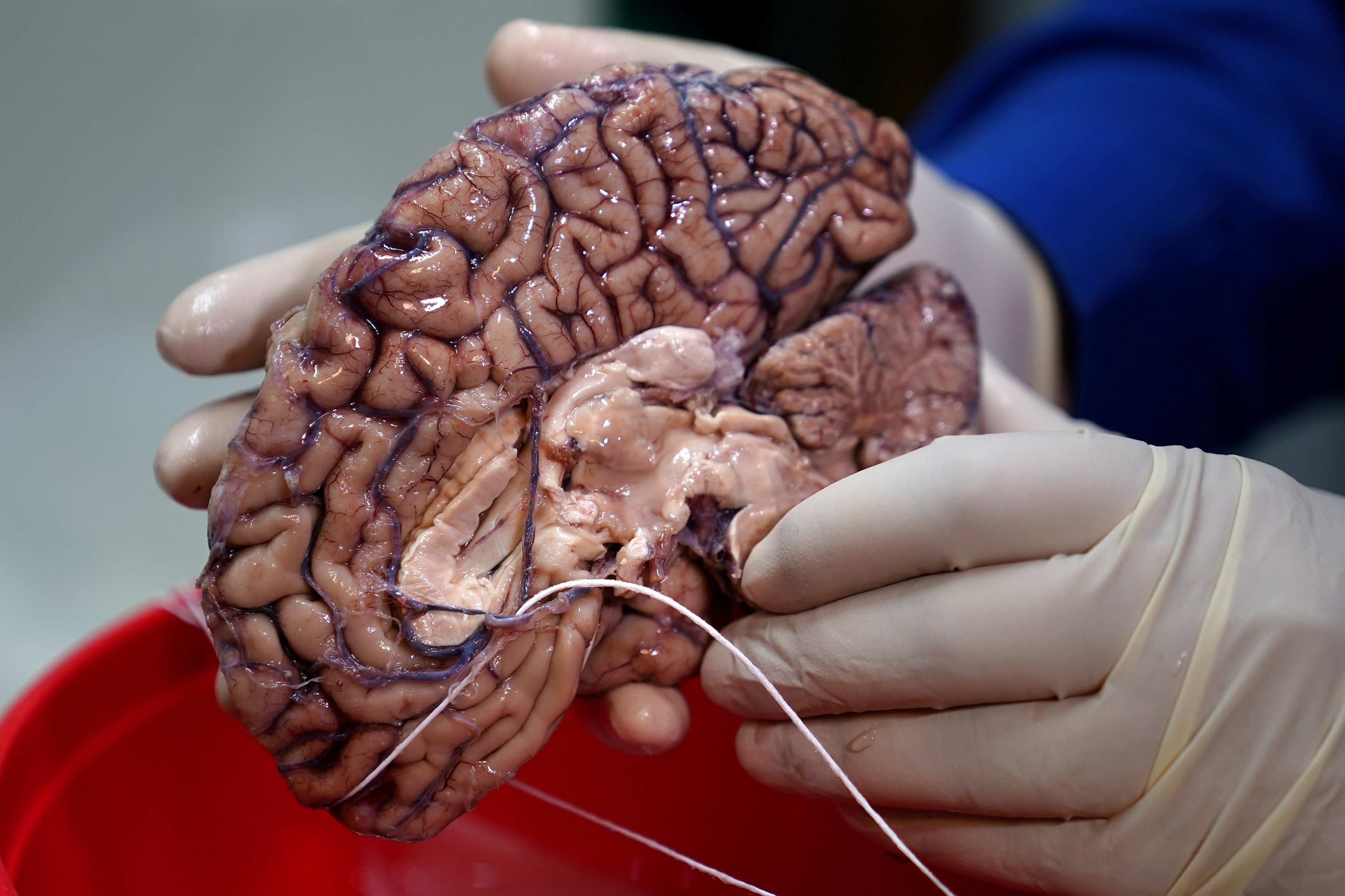 FILE PHOTO: A doctor holds a human brain in a brain bank in the Bronx borough of New York City, New York, US June 28, 2017. Credit: Reuters/Carlo