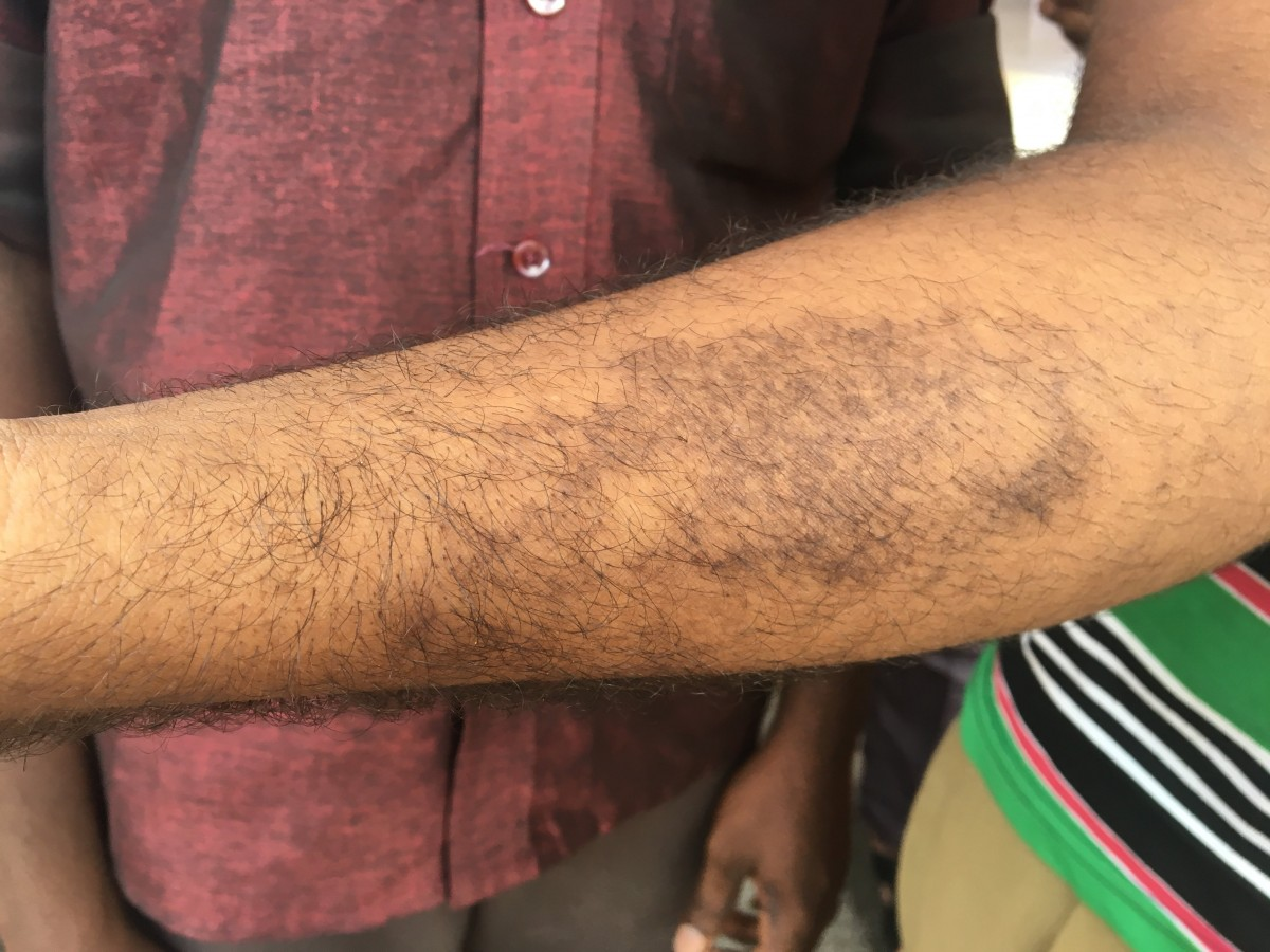 Suresh shows the skin disease on his arm.