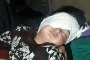 19-Month Old Heeba Is the Youngest Victim of Kashmir's Pellet Horror