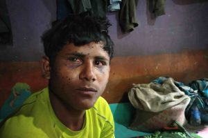 17-Year-Old Bihar Labourer is Latest Victim of Pellet Guns in Kashmir