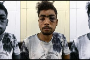 This 17-Year-Old Was the First Pellet Victim of the 'Union Territory' of J&K
