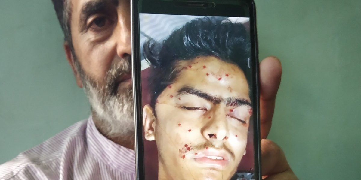 'Can a Stone Do This?': Family of Srinagar Youth Who Died Refutes Police Version