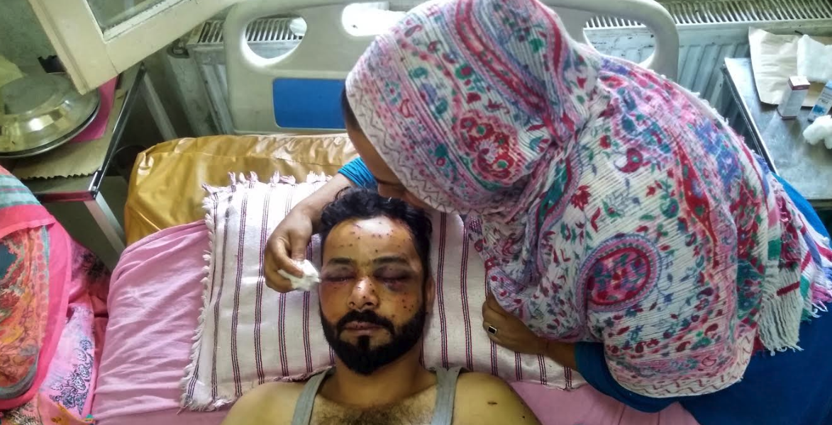 Hours After a Late-Night Knock, an Entire Neighbourhood Reduced to Pellet Injuries