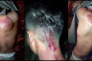 Punjab Police Allegedly Assault Villagers, Then Arrest Them For 'Attempt to Murder'