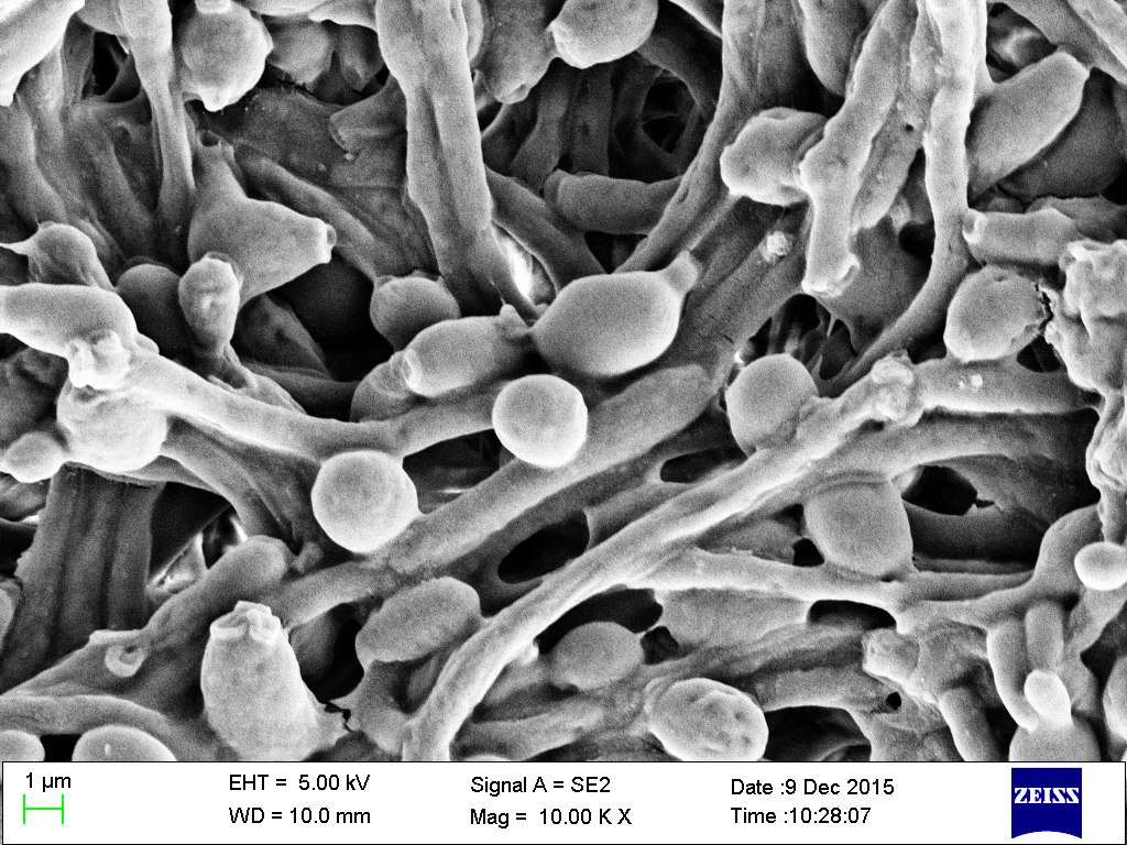 Fungal Infections, the Drugs Used to Fight Them and Drug Resistance – The Wire Science