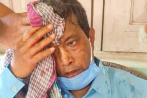 After Former CM Says Law and Order Has Collapsed in Tripura, CPI(M) MLA Attacked