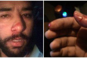Journalist Allegedly Assaulted, Harassed By Policemen in Kashmir
